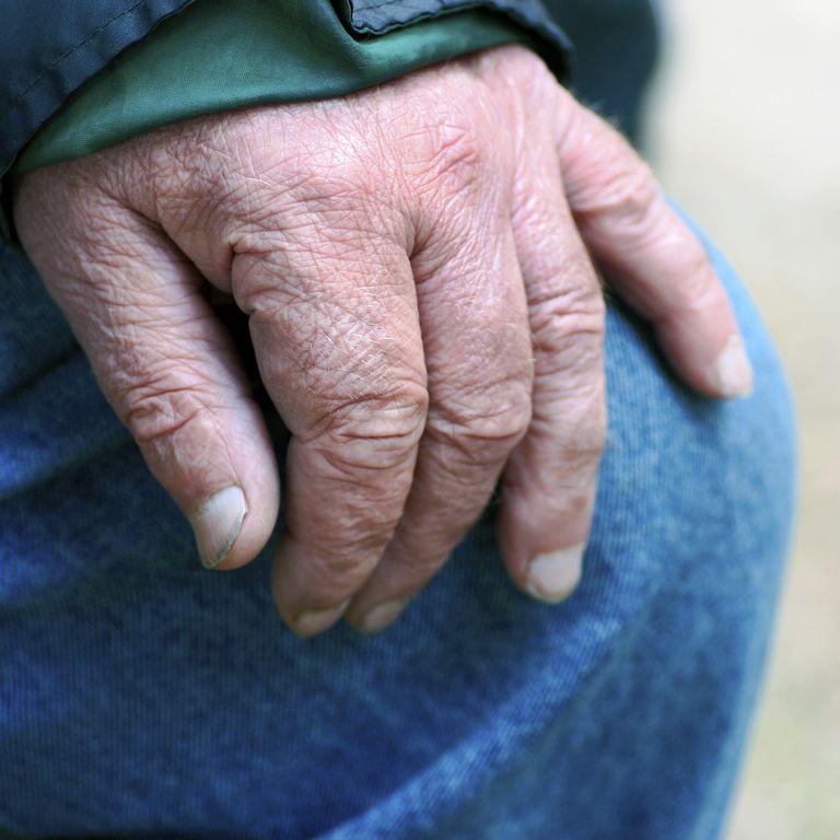 older man's hand showing fingernails