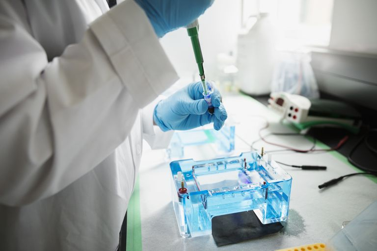 Scientist with pipette loading DNA for gel electrophoresis
