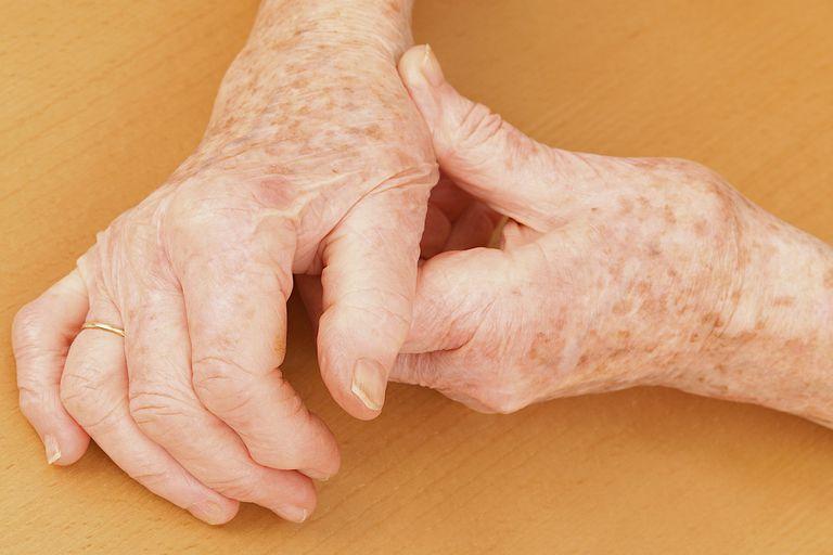 An elderly person suffering from osteoarthritis.