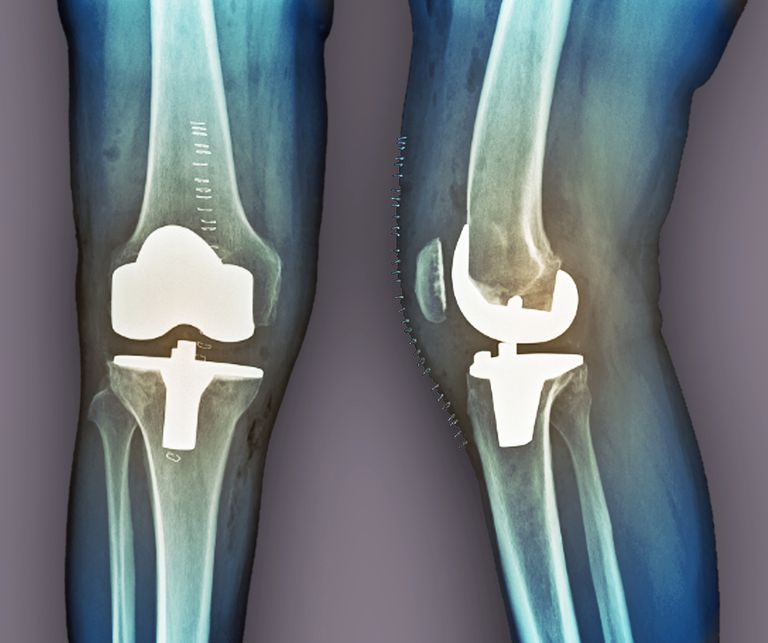 Total knee replacement, X-rays