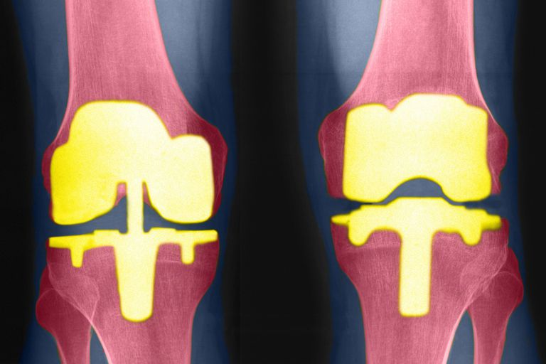 X-rays showing prosthetic knees.