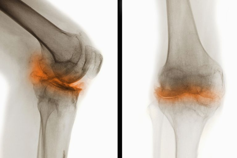 An X-ray showing osteoarthritis of the knee.