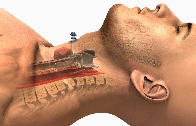 Diagram of a tracheostomy
