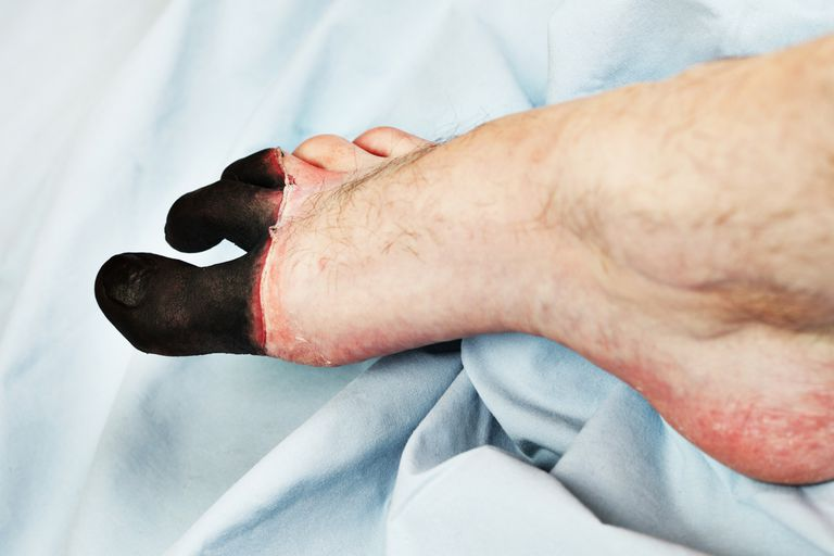 A depiction of frostbite on the toes.