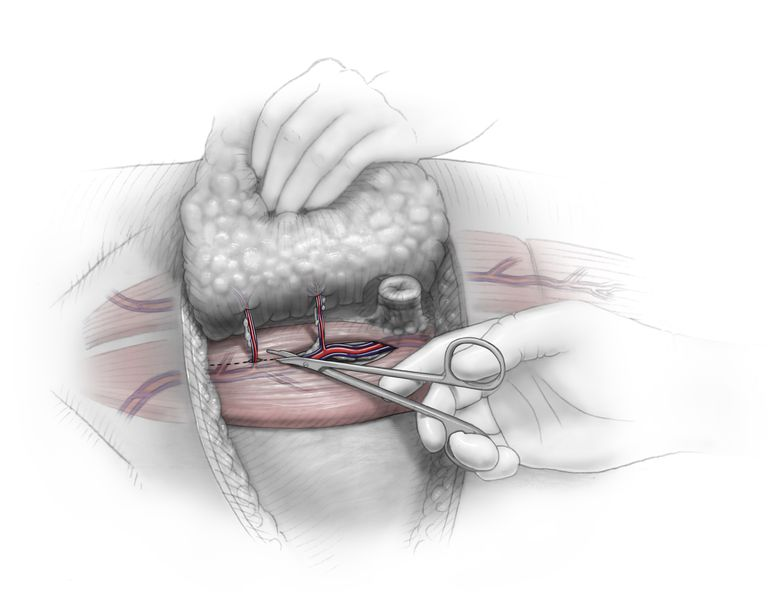 Color illustration depicting the second step of DIEP flap breast reconstruction surgery.