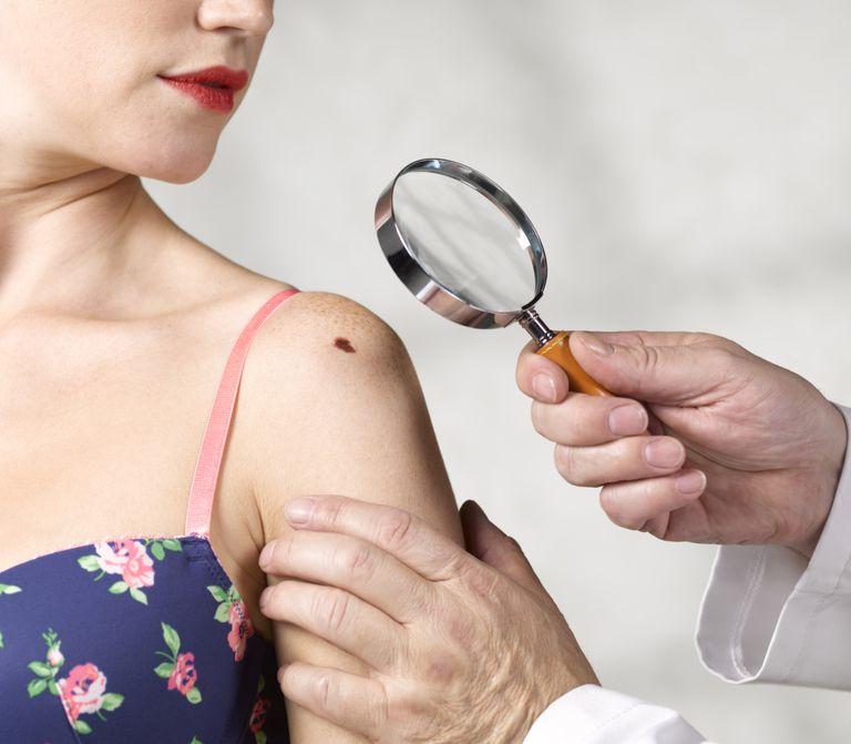 dermatologist examining young woman's mole