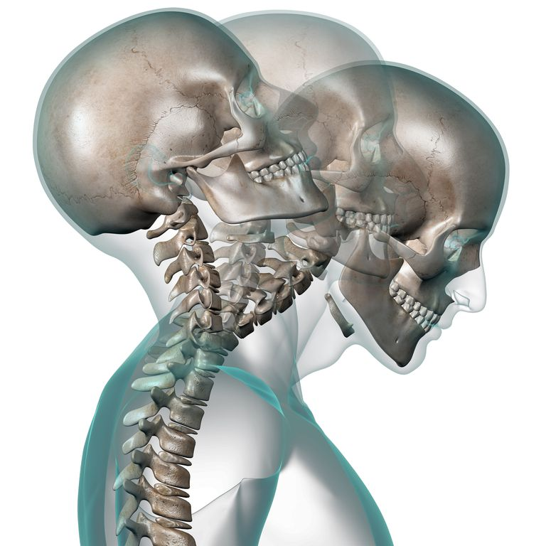 X-ray of human head showing neck contortion