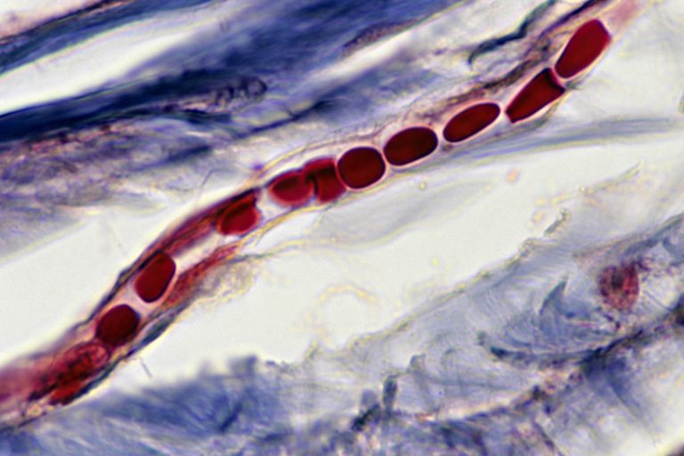 Capillary with red blood cells