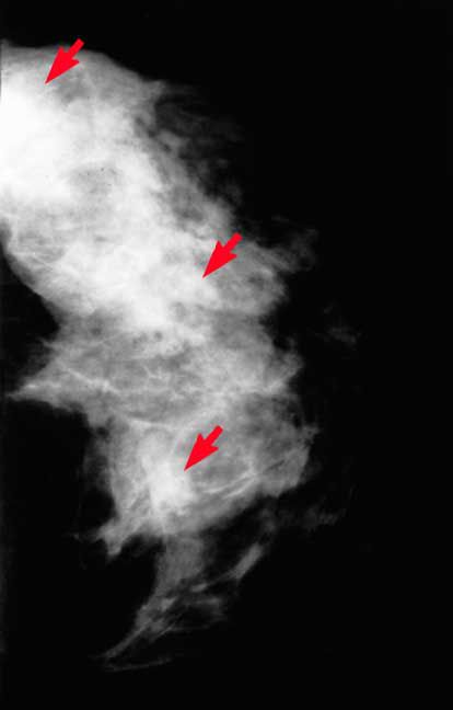 Fibrocystic Breast Tissue