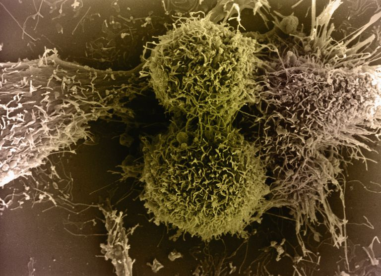 Colourised SEM image of Two Cytotoxic T Cells; T lymphocytes that kill cells infected with viruses