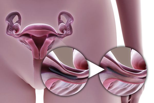 Tubal Ligation Metal Implant