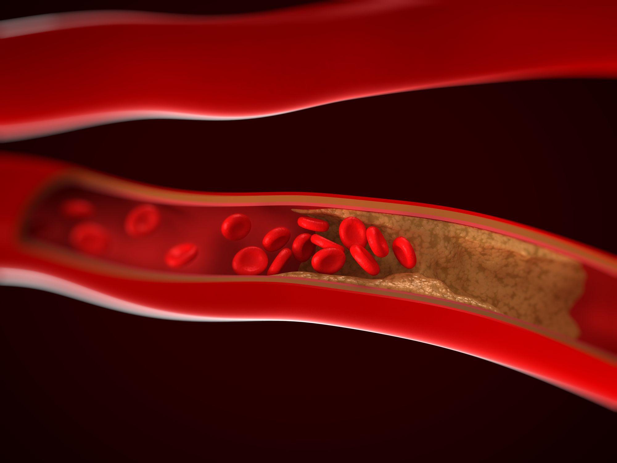 ¿Qué es la arteriosclerosis?