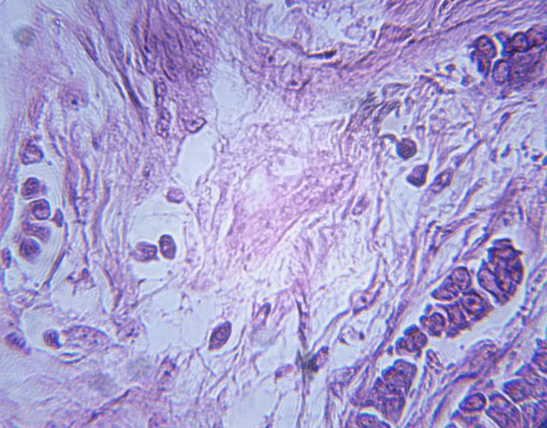 Microscopic Image of Breast Carcinoma