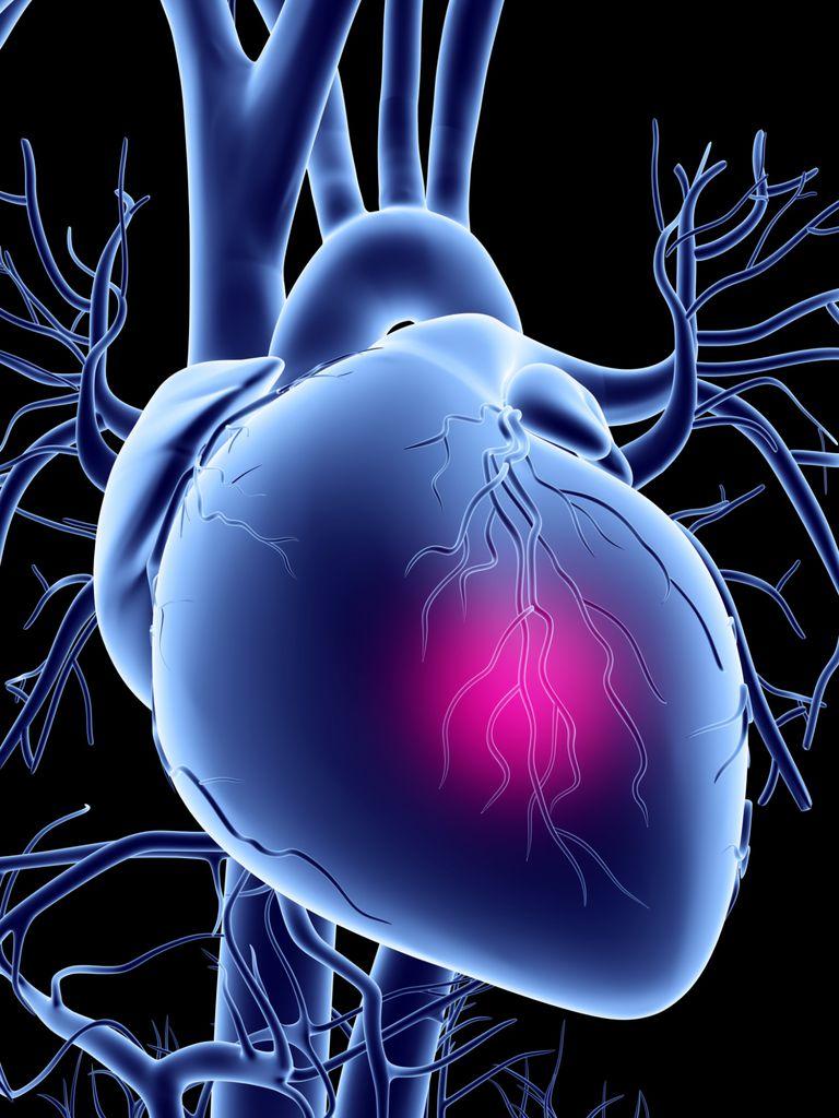 que es un infarto silencioso, infarto silente, sintomas del infarto silencioso