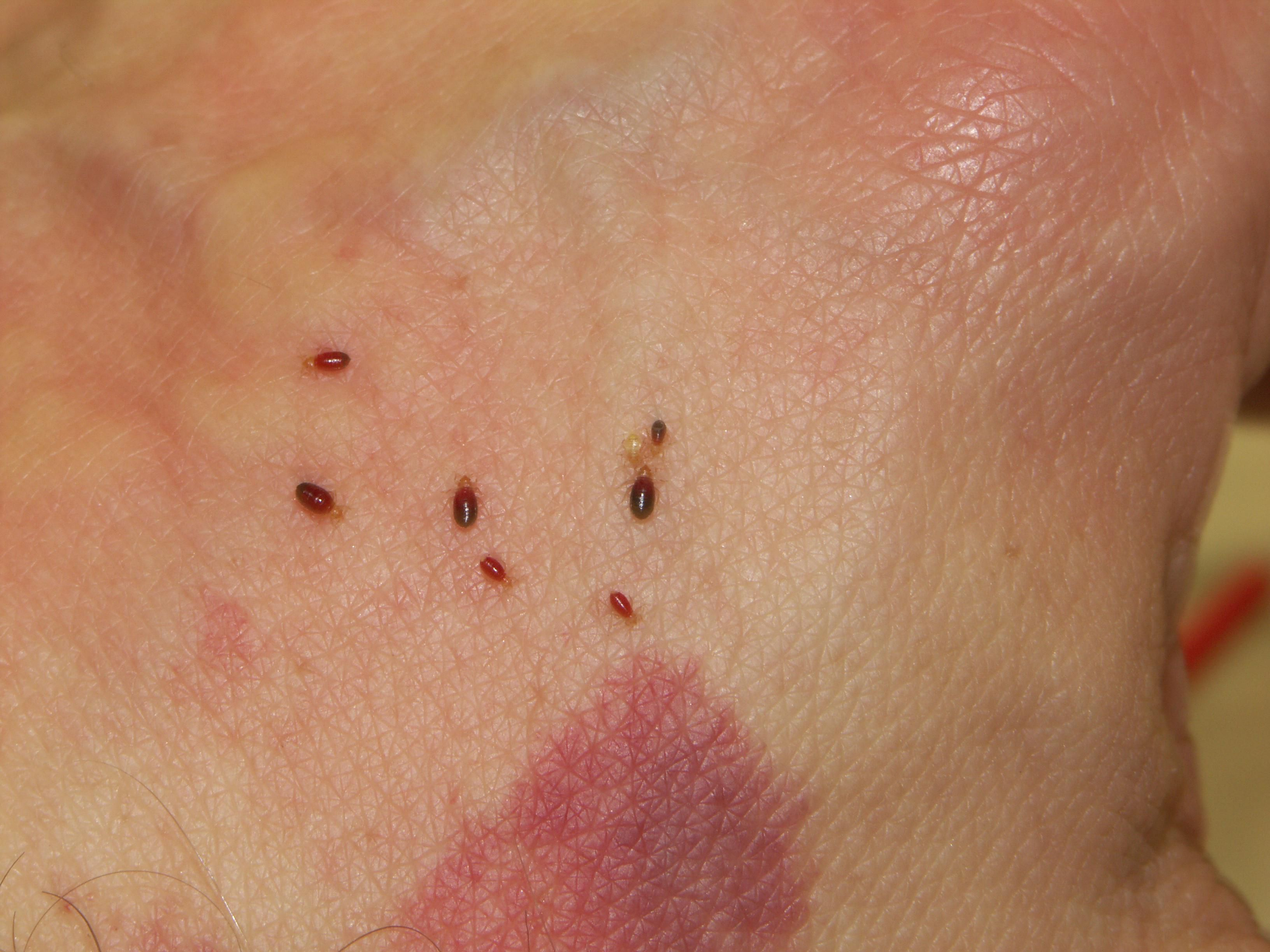 treatments for bedbug bites itching and inflammation