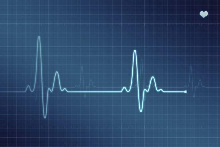 Monitor holter 24 horas prueba para detectar arritmias