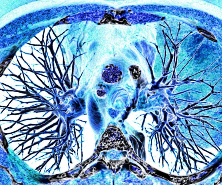 heart-lungs.jpg