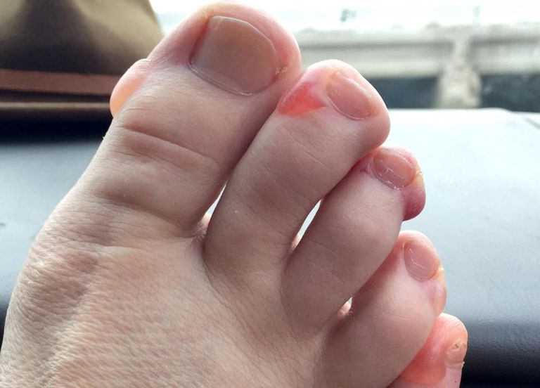 Blisters after Chicago Marathon
