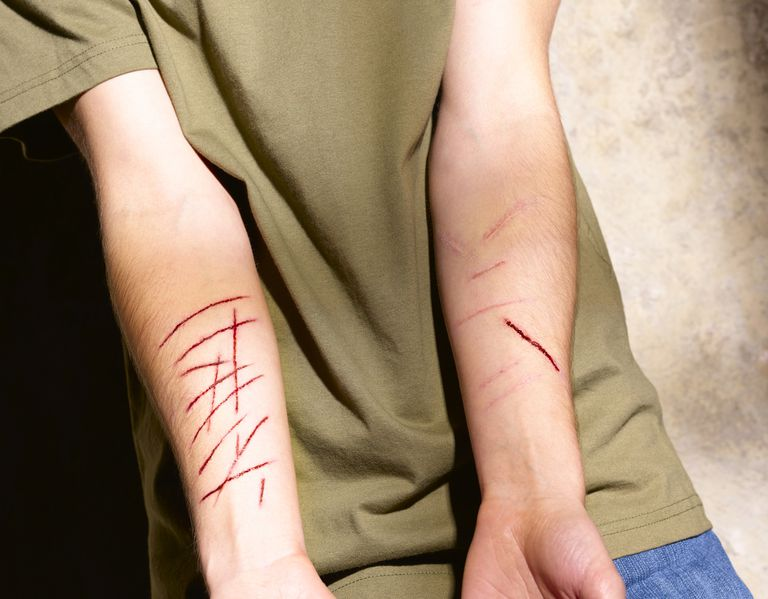 Teenager showing scars form self-harming