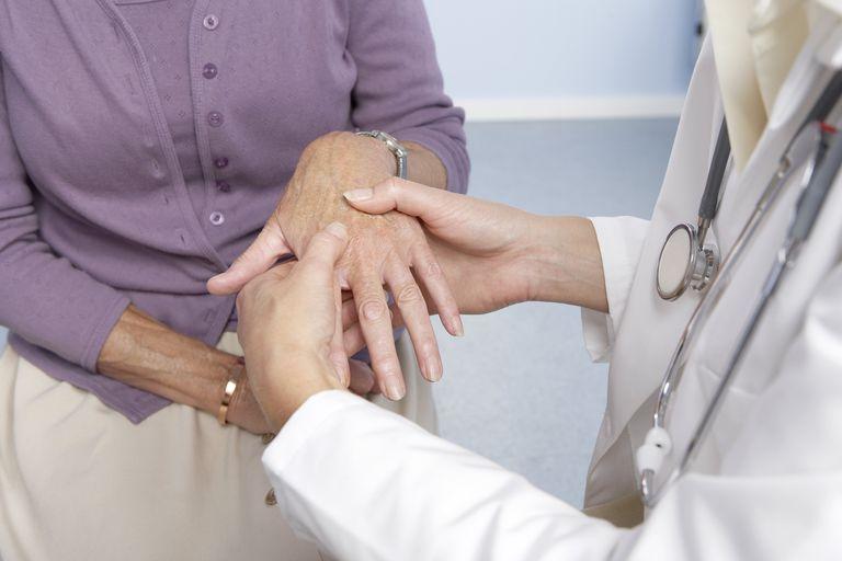 Rheumatoid arthritis, general practitioner examining patient and hand for signs of rheumatoid arthri