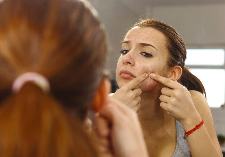 Acne in pregnancy