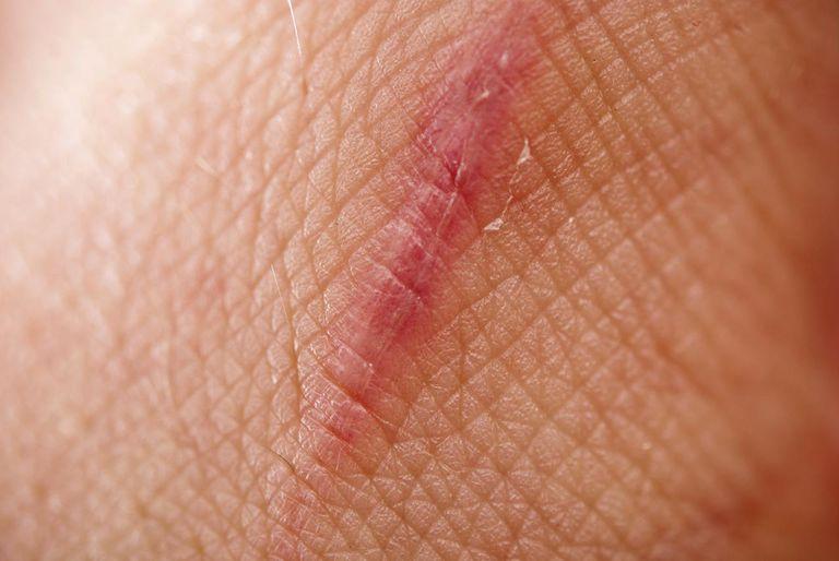close up scar on skin