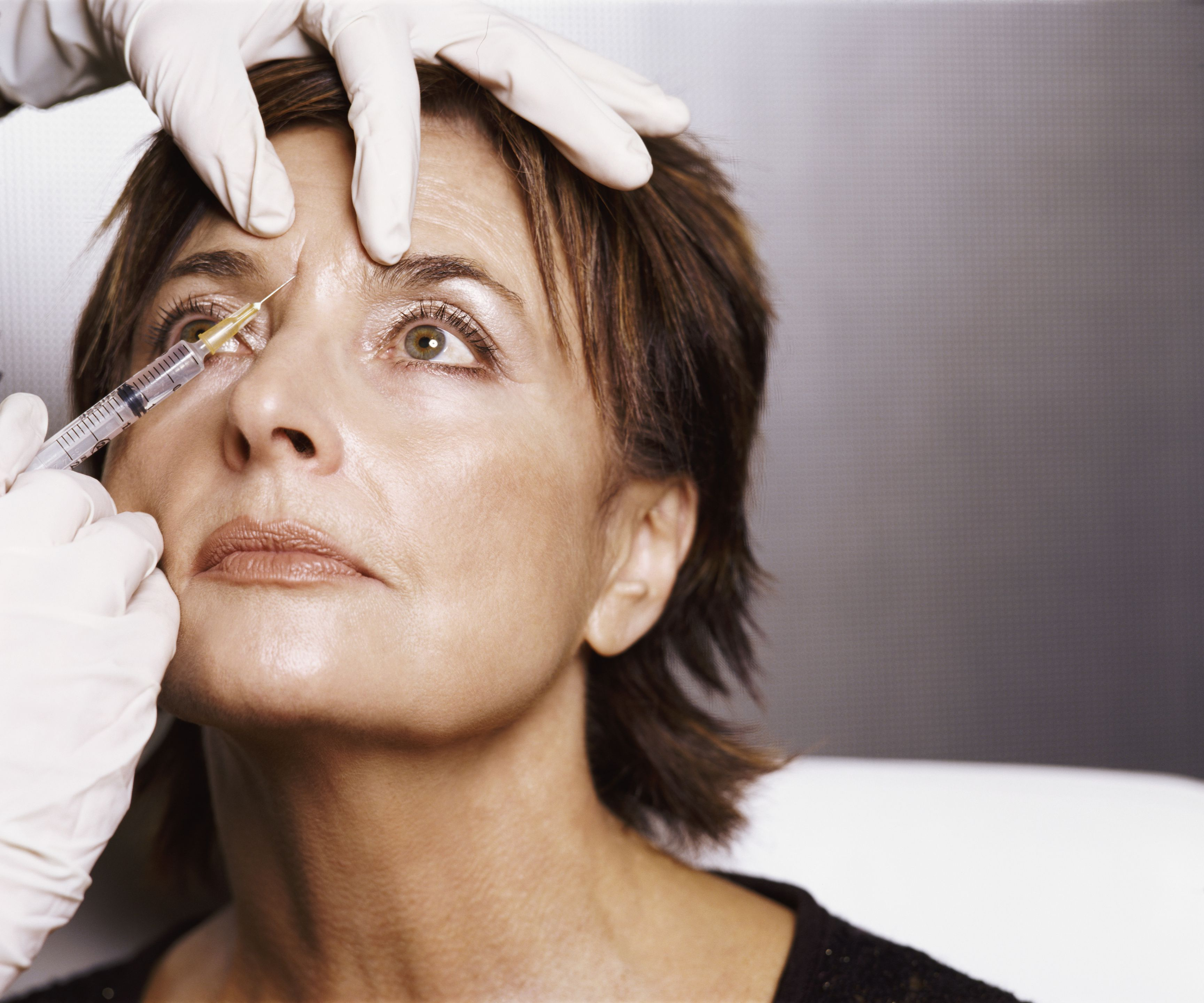 5 deep wrinkle treatments that actually work 5 amazing uses for botox solutioingenieria Image collections