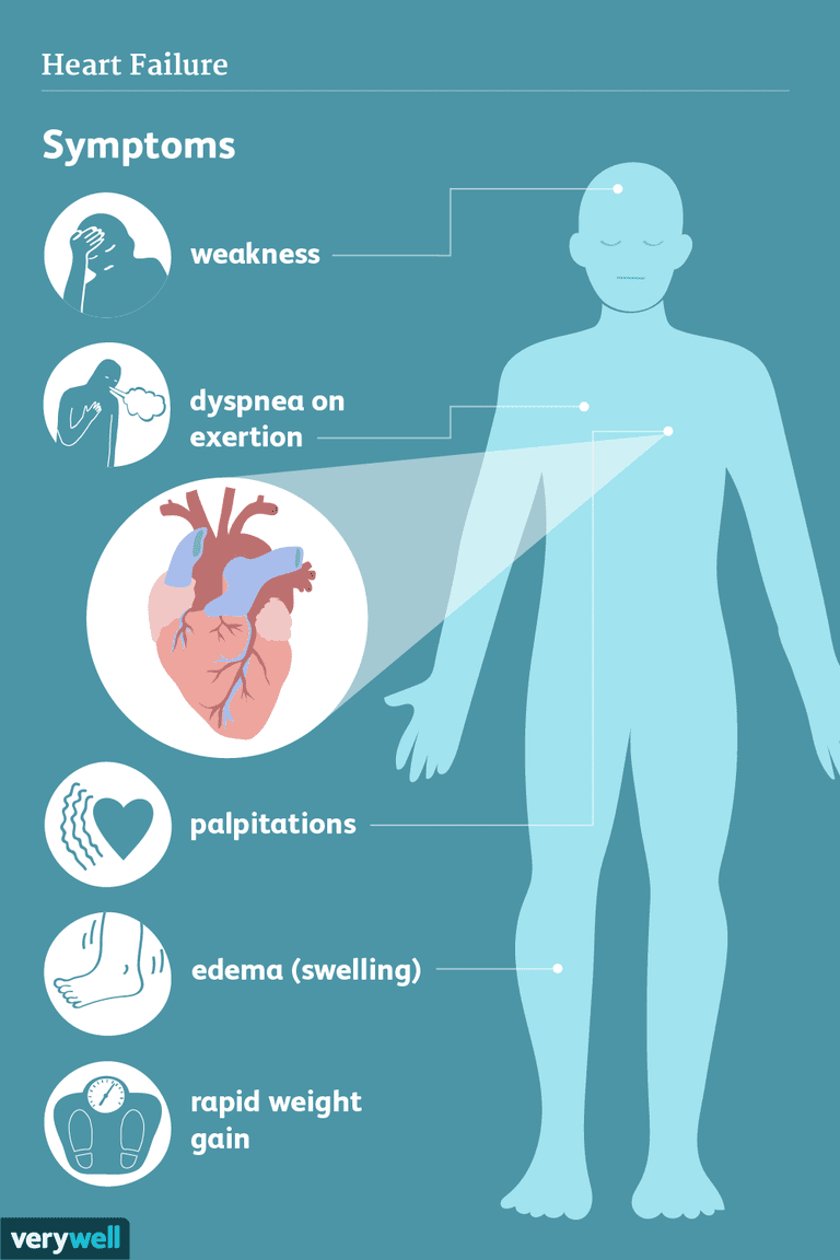 heart failure symptoms