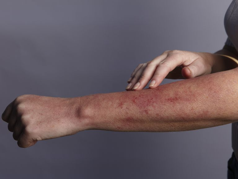 Lupus causes a rash on the skin.