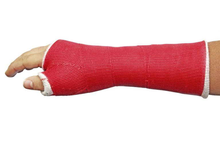 red cast on an arm