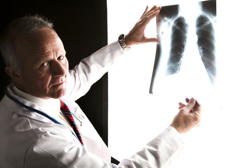 Doctor with lung X-ray