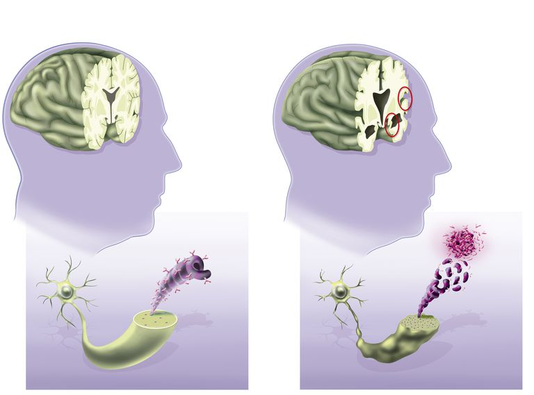 Some of the Brain Changes as Alzheimer's Progresses to the Late Stages