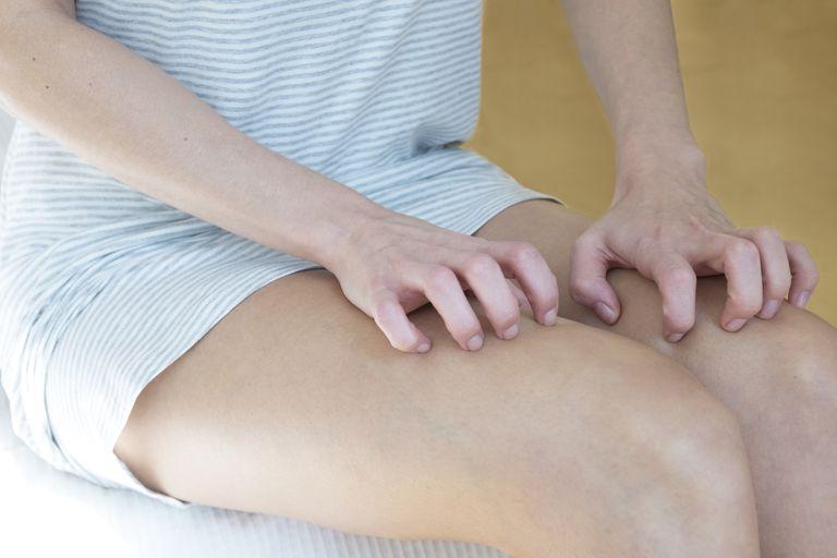 Woman scratching her legs