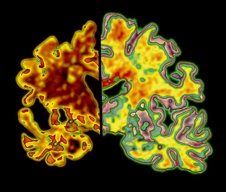 Cerebral Atrophy: Alzheimer's disease vs normal
