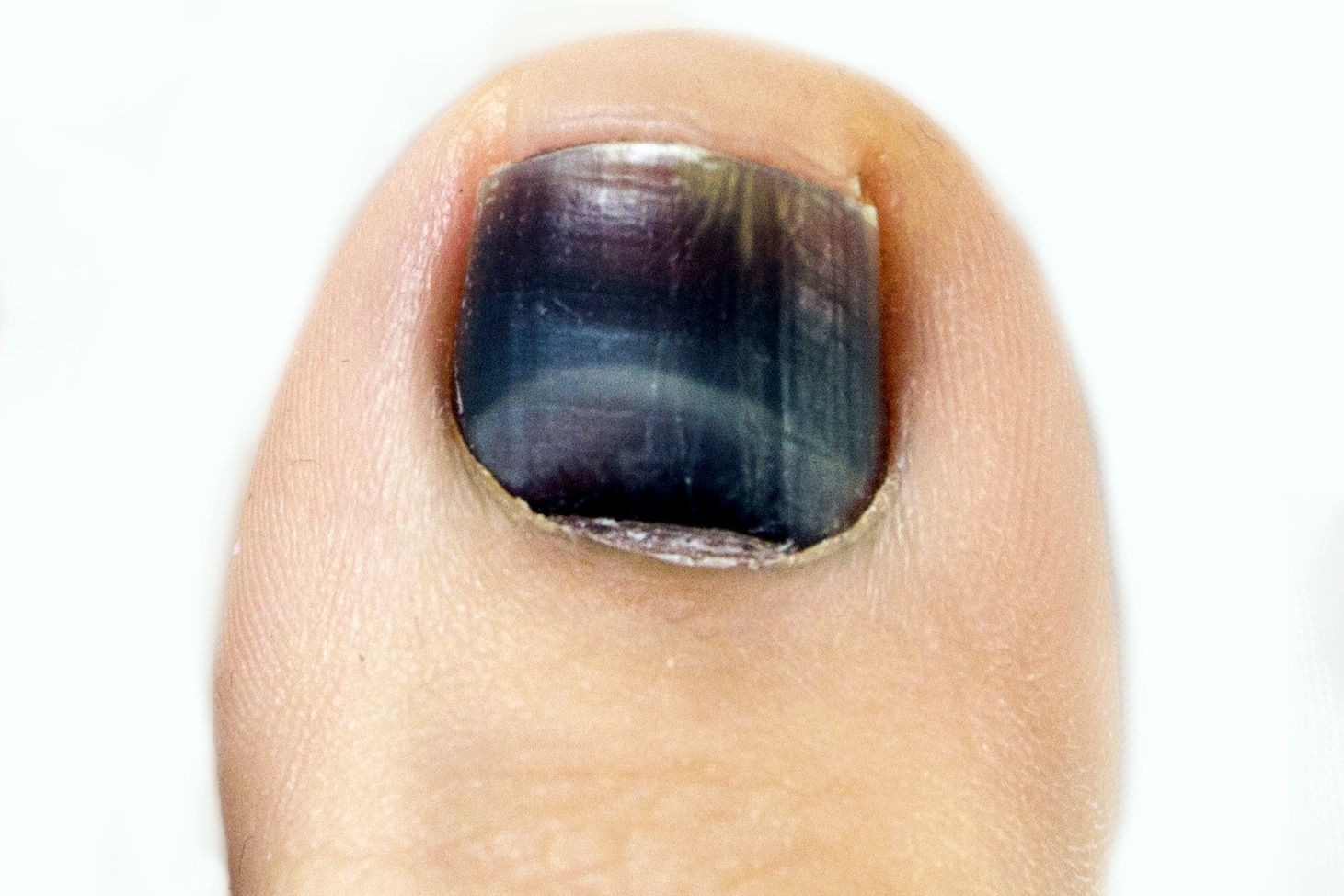 Black Toenail From Running or Walking