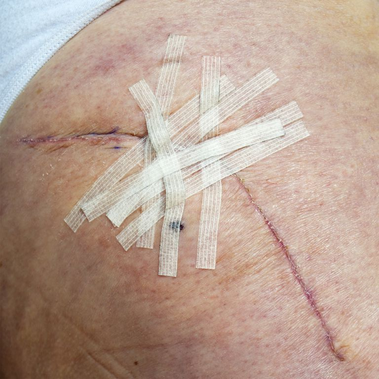Healing hip replacement wound with steri-strips