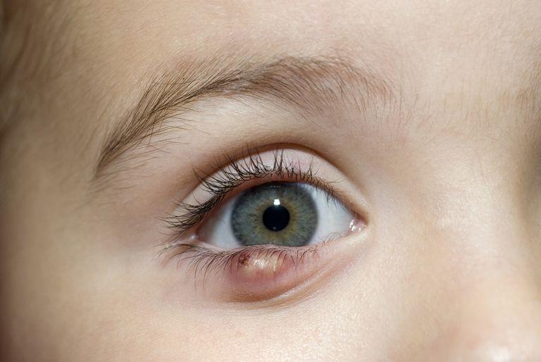 Stye or chalazion on a child's eye