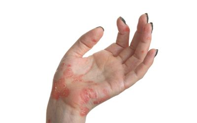 Special Concerns for Women With Psoriatic Arthritis