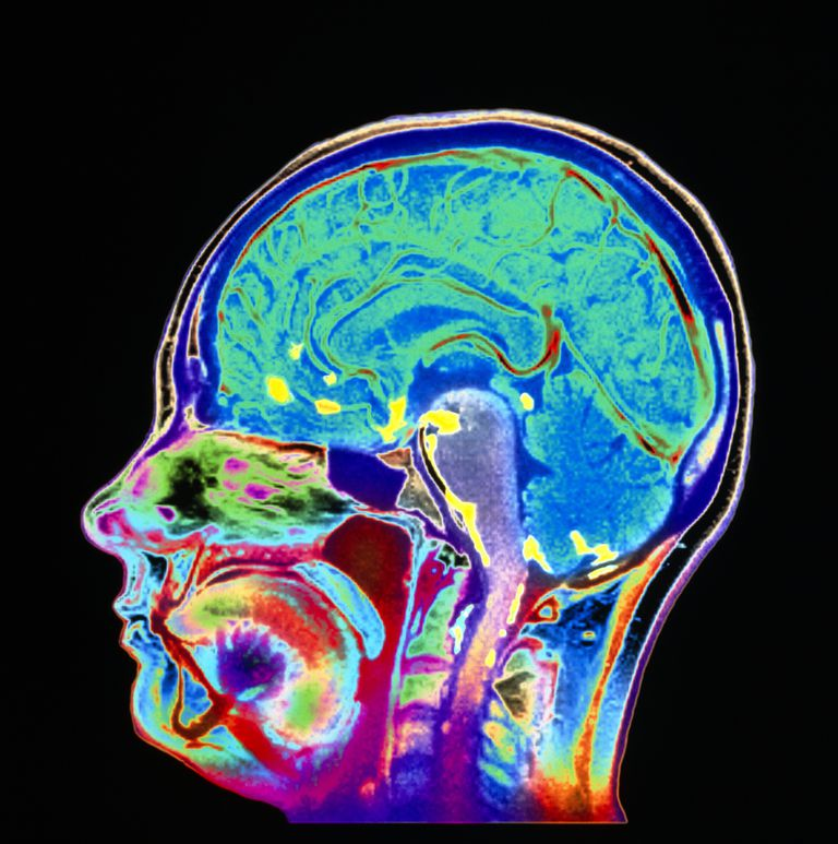 Meningitis brain scan, MRI
