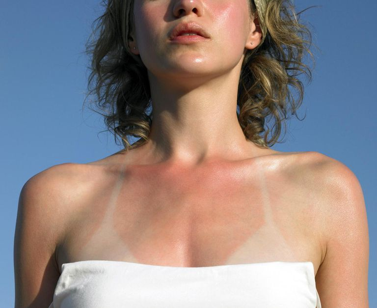 Young woman with sunburn tanlines, mid section
