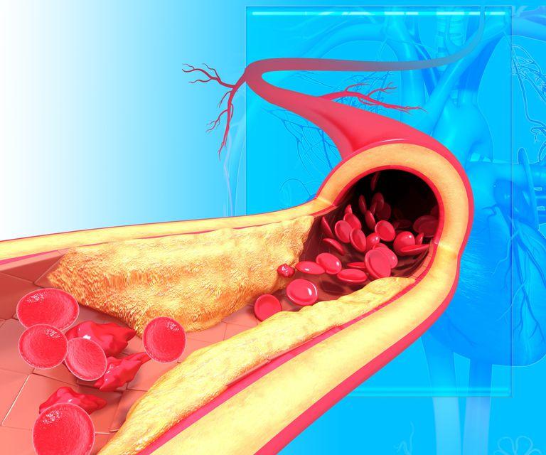 arteriosclerosis de la aorta, aneurisma aortico,