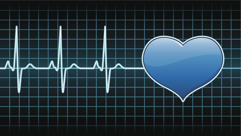Taquicardia sinusal: sintomas, causas y tratamiento