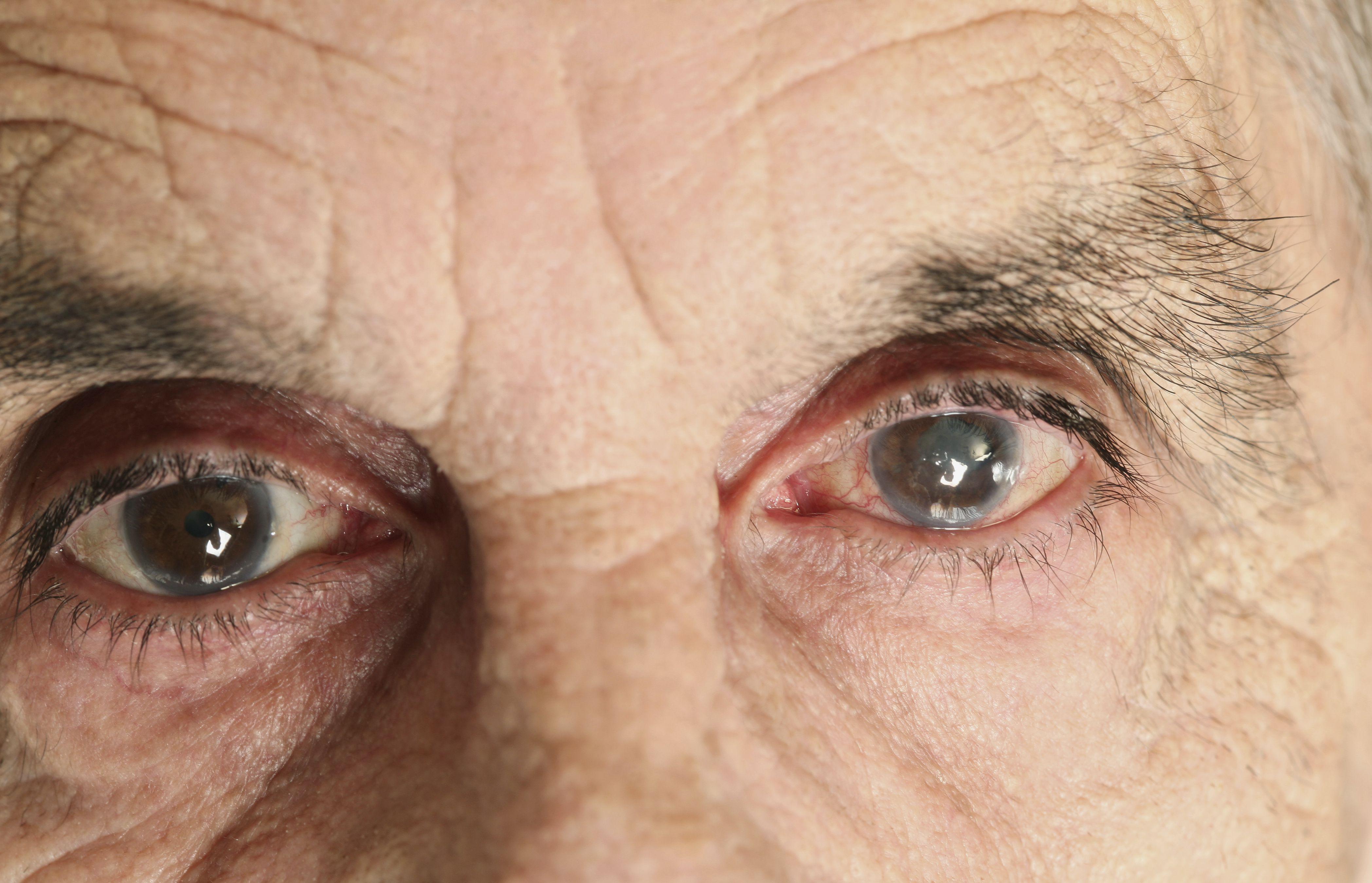 Глаукома глаза - причины, симптомы и лечение.