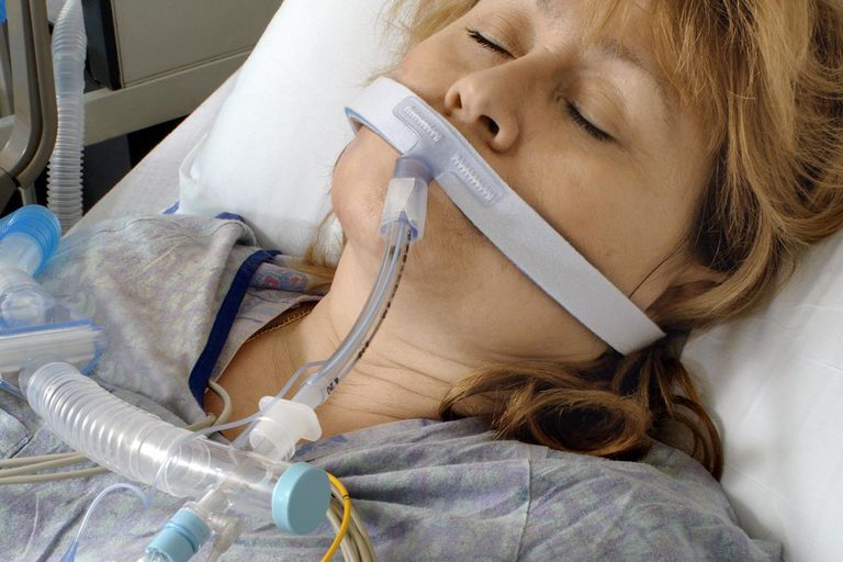 An intubated patient
