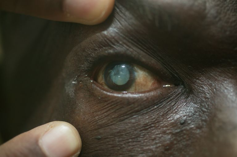 Male patient's eye with mature cataract, Close-up