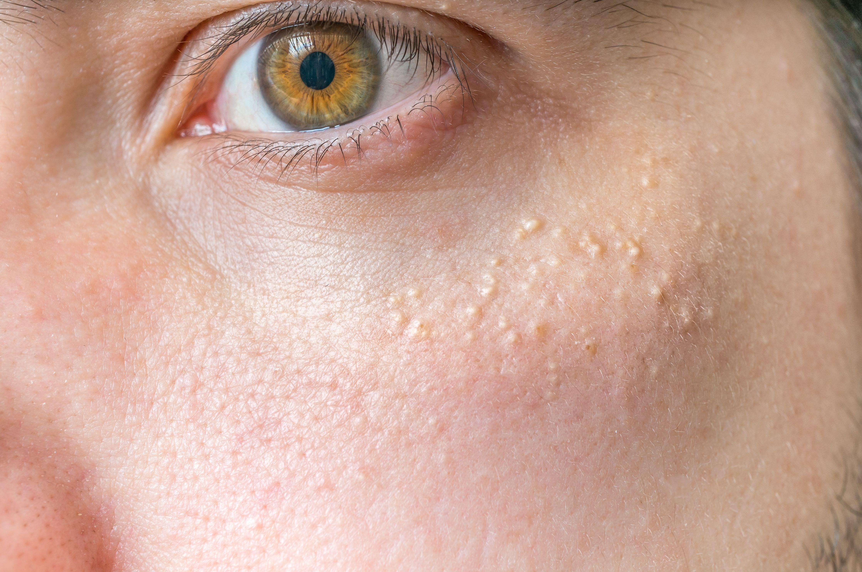 Как избавиться от жировиков на лице в короткие сроки? 31