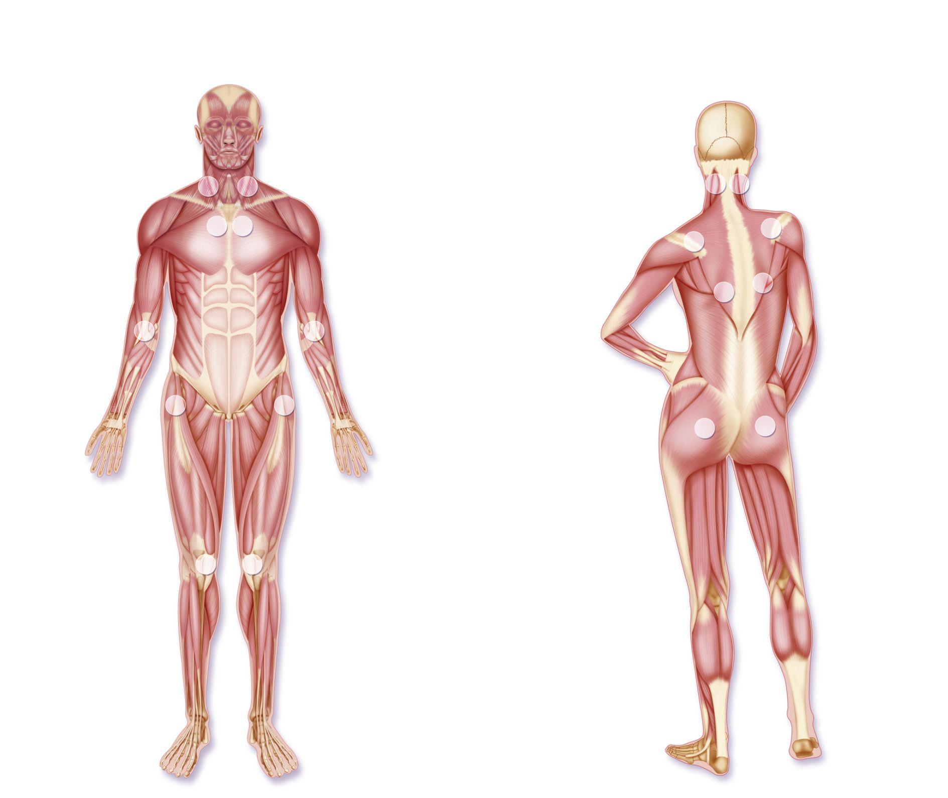 Image result for fibromyalgia 18 points
