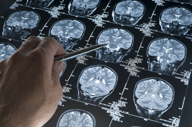 Sometimes, an MRI Is Used to Help Diagnosis Alzheimer's