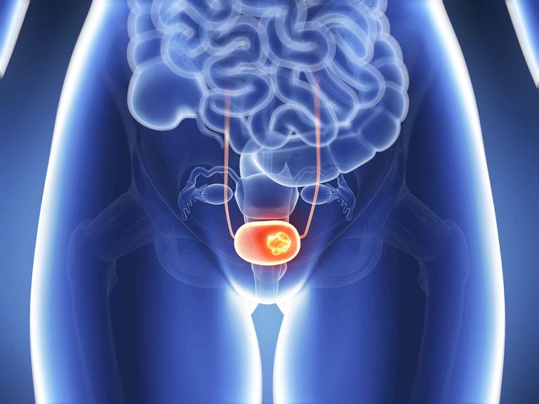 Human bladder cancer
