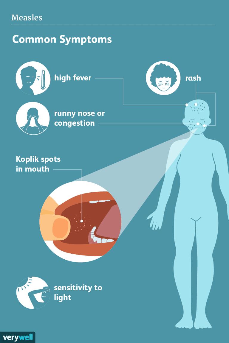 measles symptoms
